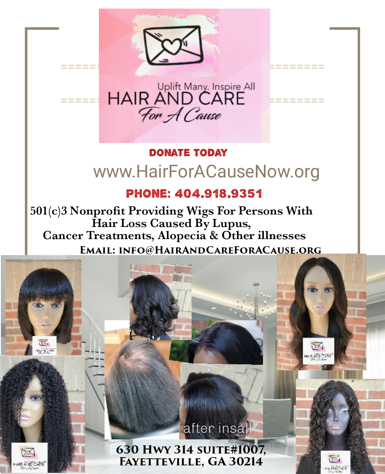 Hair And care For A Cause Charity: Donate Today Donate to help A person with hair loss caused by Lupus, Cancer, Alopecia and other hair loss conditions